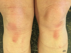 Butt-ass fugly knees complete with scars, bruises and knee pad marks.